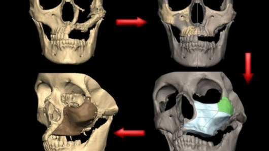 S. Bell: the process of rebuilding a damaged face using engineering-assisted surgery